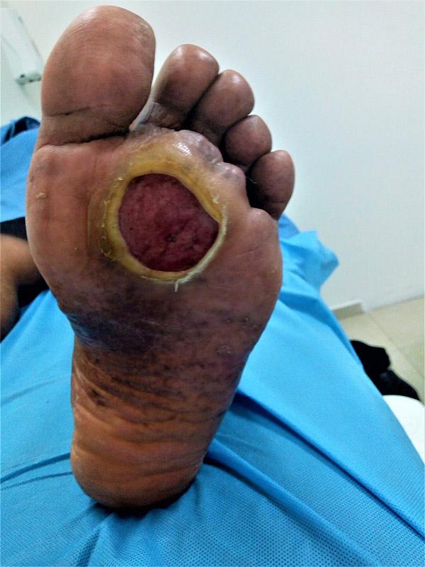 tratamiento de úlceras de pie en diabetes